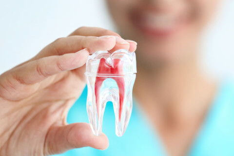ROOT CANAL & FILLINGS